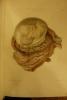Atlas de l'Art des accouchements. . Lenoir (Adolphe), Sée (Marc)